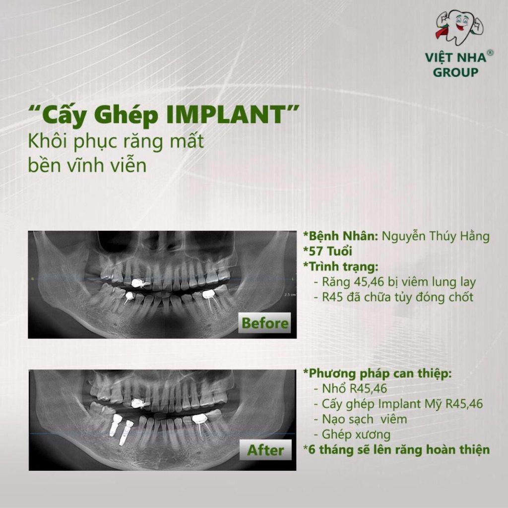 Hình mẫu của ca điều trị Địa chỉ cắm ghép Implant tại Quận Tân Bình